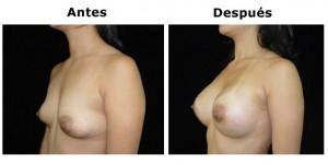 mamoplastia4