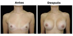mamoplastia5