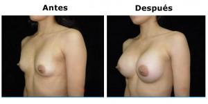 mamoplastia7